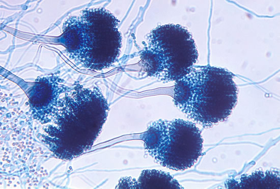 Image of Aspergillus fumigatus, the most common cause of aspergillosis