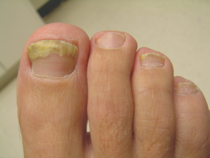 Image showing onychomycosis - Aspergillus infection of the nail