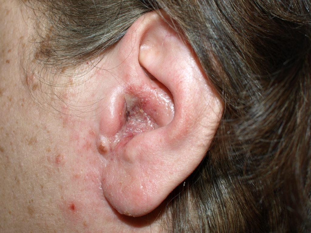 Image showing otomycosis - fungal infection of the ear